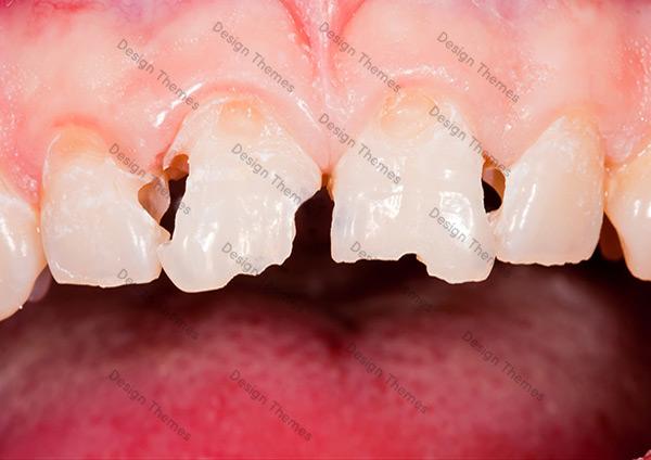 Before-Dental-3